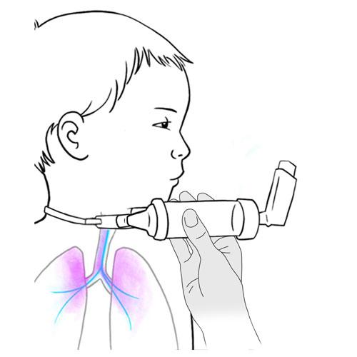 529.metered dose inhaler vapor in lungs-inhalateur doseur avec chambre espacement vaporise vers poumons.FINAL