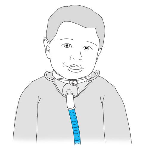 531.tracheal collar.FINAL